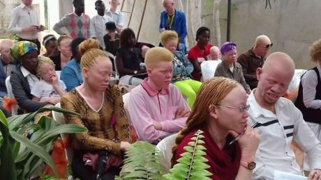 Nível de discriminação de pessoas portadoras de albinismo em Angola é alto - Estudo