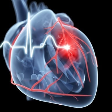Arteriopatia periferică