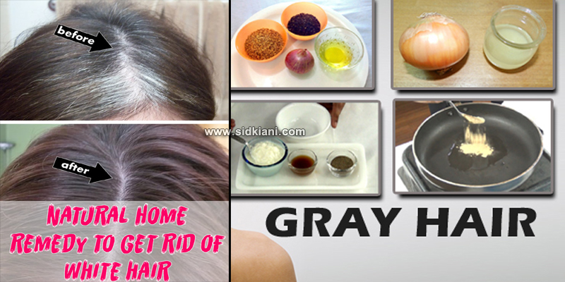 How-To-Get-Rid-Of-Gray-Hairs-With-Kitchen-Ingredients