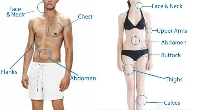 liposuction Treatment area