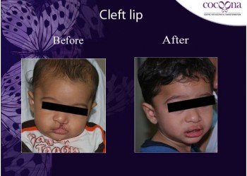 CLEFT AND CRANIOFACIAL SURGERY