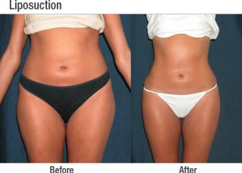 Liposuction 5