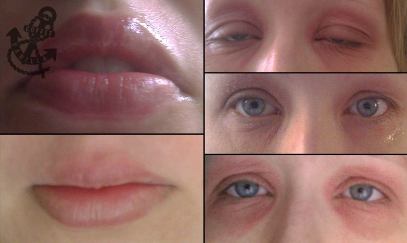 Allergic Reaction To Eye Makeup Remover Makeupviewco - Allergic-reaction-to-makeup-remover-on-eye