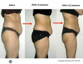 Obesity17 (640x493)