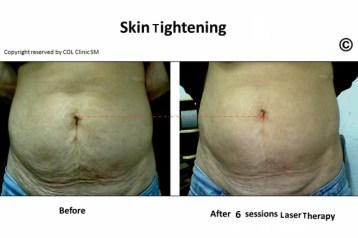 skin tightening (640x425)