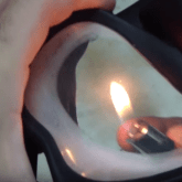 Burn inside of Scuba mask