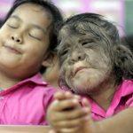 síndrome del hombre lobo niños en españa 150x150 - 17 niños en España contraen 'síndrome del hombre lobo' por tomar medicina incorrecta