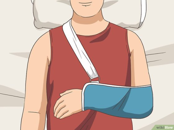 Immagine titolata Sleep with Rotator Cuff Pain Step 11