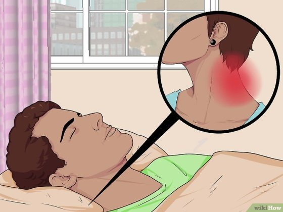 Immagine titolata Sleep with a Pinched Nerve Step 2