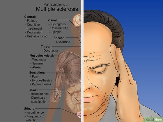 Immagine titolata Diagnose Multiple Sclerosis Step 4