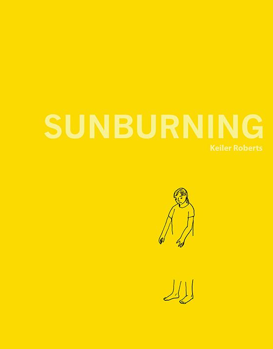 Sunburning_560.jpg