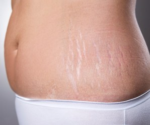Learn How to Prevent Stretch Marks During Pregnancy