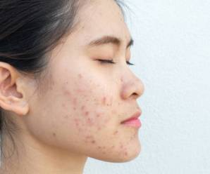 How To Remove Acne Scars?