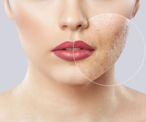 Acne Care-Tips for a Daily Routine