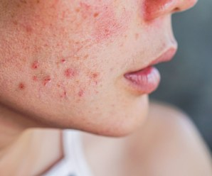 Do You Suffer Troublesome Acne? These Easy Tips Can Help