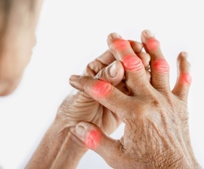 Natural Remedies for Arthritis cure with easy way