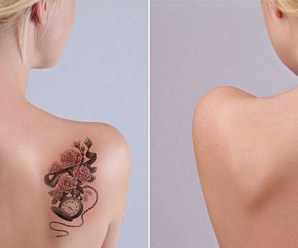 How to Remove Your Tattoo Naturally