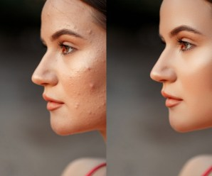 Home Made Acne Treatments