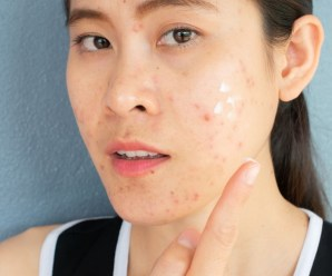 Natural Acne Treatment – How To Choose The Best Natural Treatment For Acne
