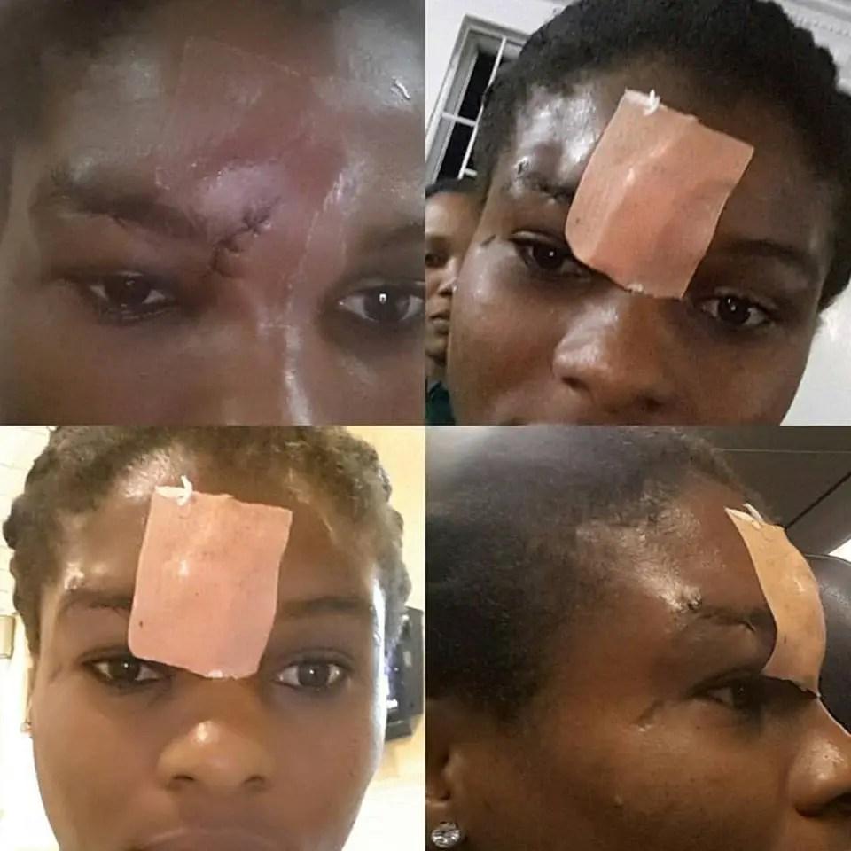 Oparanozie Slams Ref, Displays Facial Stitches After Falcons, Senegal Clash
