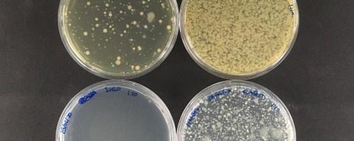 Resultados del cultivo de bacterias presentes en la pila de compost y en el suelo