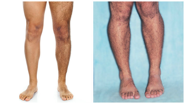 depilacion-masculina-delicado-natural-FotoDreamstimeCortesia_MEDIMA20150527_0103_5