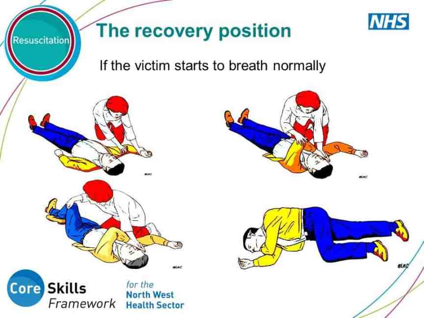 The recovery position If the victim starts to breath normally