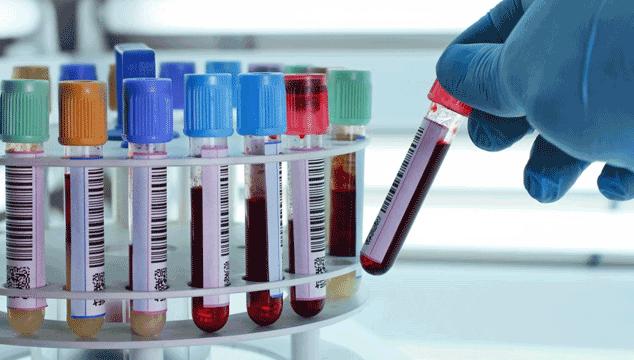 Testes realizados para infertilidade em mulheres