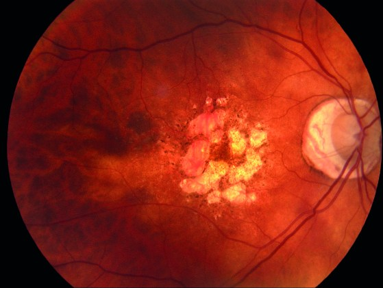 Stem cell treatment for macular degeneration proved successful