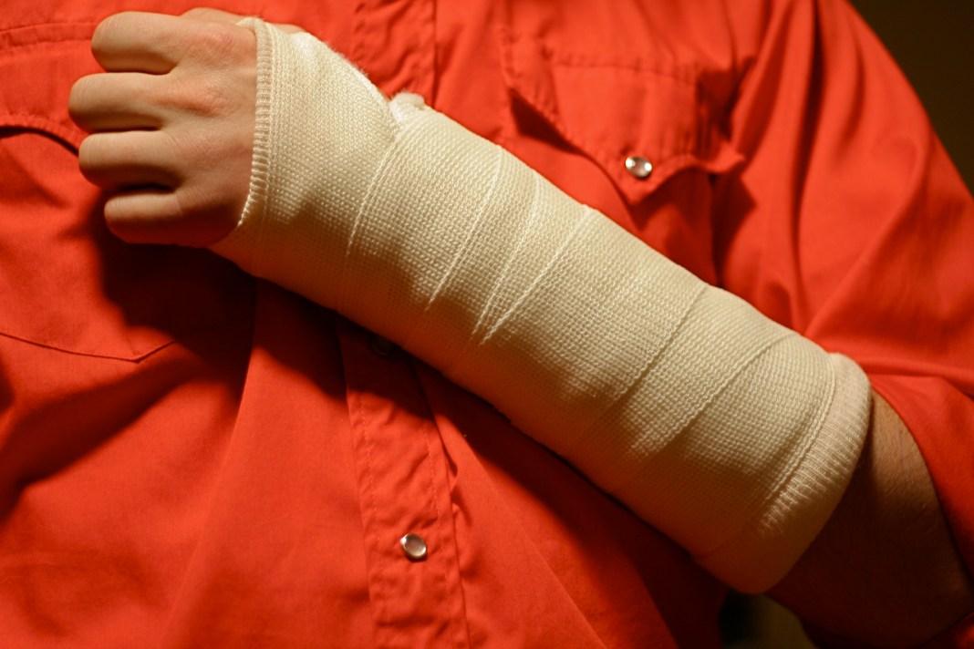 Broken arm. Photo: Flickr, Sandor Weisz