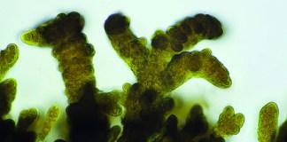 Cyanobacteria. Photo: Flickr, driker