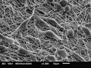 Fibroblasts. Photo: Wikipedia, Judyta Dulnik