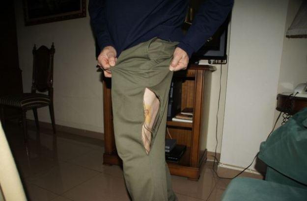 Un home és atacat per un gos a Canals