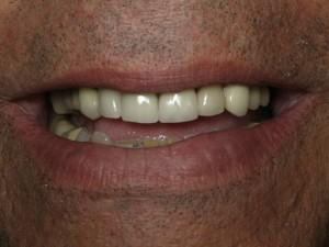 Thousand Oaks Emergency Dentist