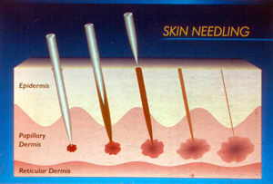 Poster # 73  SKIN NEEDLING FOR TREATING WRINKLED UPPER