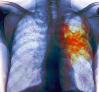 pulmones tuberculosis