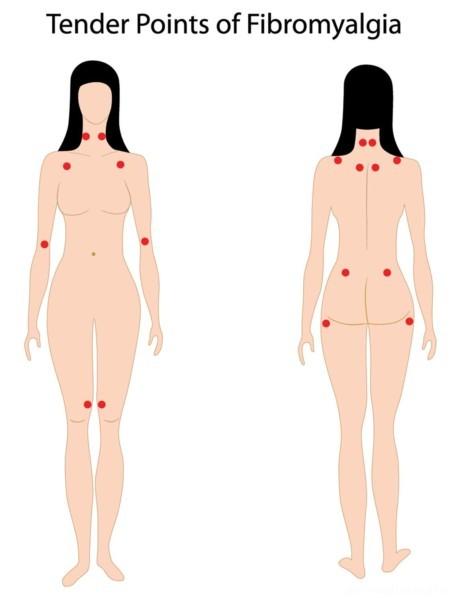 Fibromialgia ~ Viviendo con dolor crónico