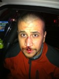 George Zimmerman as he appeared that night