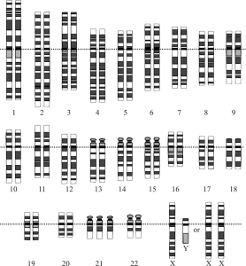 What Down's syndrome looks like at the chromosomal level