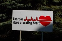 Abortion stops a beating heart. The Texas Heartbeat Act mobilizes citizen prosecutors to stop this kind of thing.