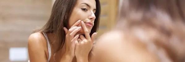 Trucs et astuces : lutter contre l'acné et les boutons