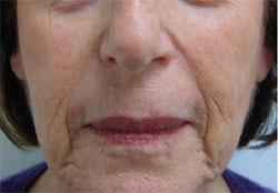 Nasolabial Folds Before Carboxytherapy