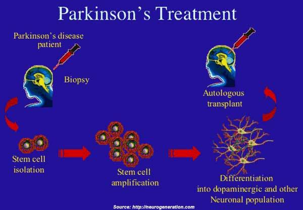 Parkinson's Disease: Types, Symptoms, Causes, Diagnosis ...
