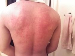 hives_on_back