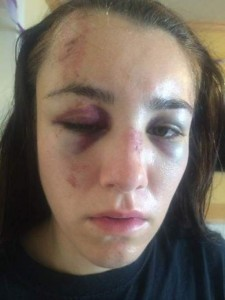 Gabbi Lemos Police Brutality