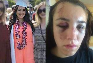 Sonoma County Ca. Lawsuit Claims Police Brutality Against Female Teen