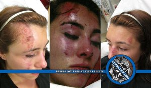 Lawsuit Prompts Retaliation After Deputy Grinds Woman's Face In Gravel