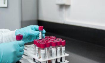 Caso sospetto di coronavirus in Umbria: il test è negativo