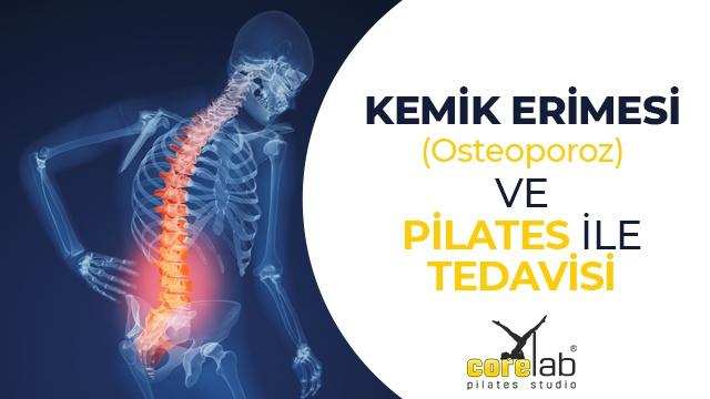 kemik-erimesi-osteoporoz.jpg?fit=640%2C360&ssl=1