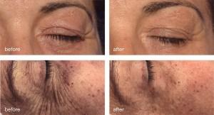 mesoestetic-eyecon-oogbehandeling-corpocare